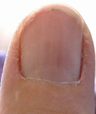 Right Thumb Nail rather distinct red lines developing 7 10 07Sm Fingernails and Redness
