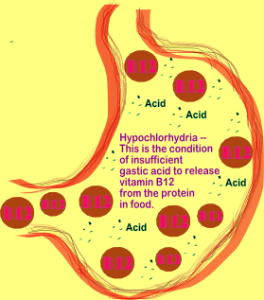 Illustration by Karen Kline of Hypochlorhydria 264x300 Health Boundaries ~ What are they?
