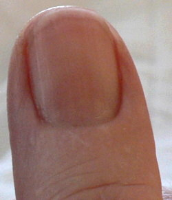Right Thumb Dec 25pmCropped3 Fingernails and Redness