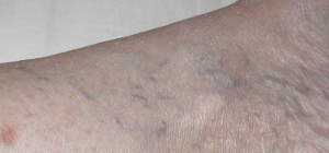 August_1_varicose_veins_after_serrapeptase_Cropped Scale 2014