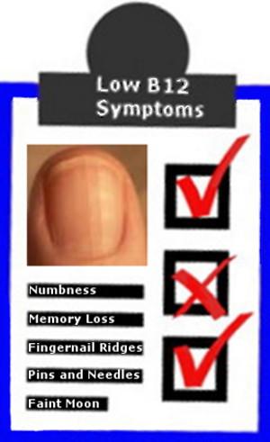 Low Vitamin B12 Symptoms