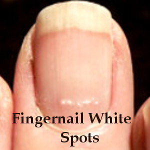 Fingernail White Spots