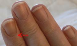 Fingernails_Dec_23 250 Arrow