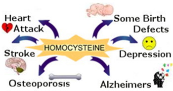 Graphic: High Homocysteine is linked to cardiovascular disease, stroke, osteoporosis, Alzheimer's, Depression, and even some birth defects in babies whose mothers had a high homocysteine level during pregnancy
