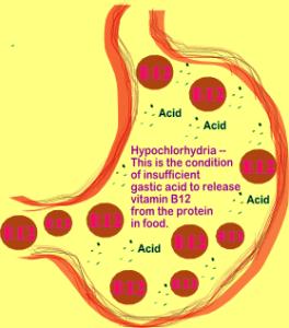 Illustration_by_Karen_Kline_of_Hypochlorhydria