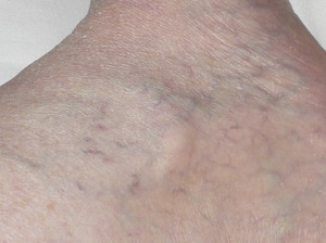 Serrapeptase Vein Photos