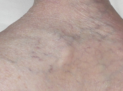 Serrapeptase working on veins - 2 weeks later