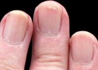 Left_Ring_Fingernail 200