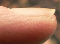 Normal fingernail on little finger, left hand
