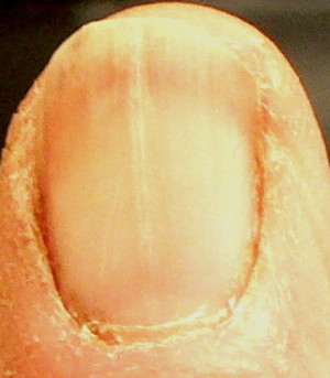 thick whitish ridge on fingernail