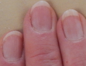 Picture of fingernails showing small moons returning from eating Swiss cheese