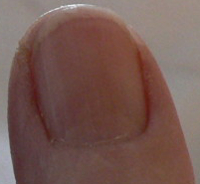 Right Thumb Dec 23 06am May 2014