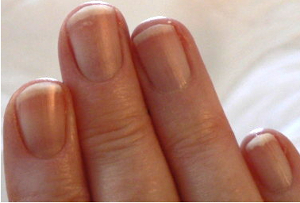 moons on fingernails reappear following less stress