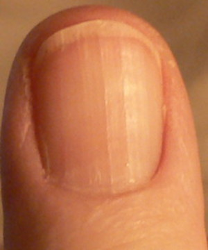 photo of thumb nail clearly shows ridges