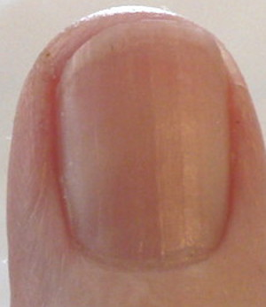 Photo - B12 shot and vitamin C make a visible difference in fingernail