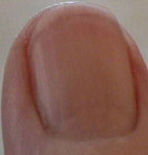 "pitting not shown clearly by photo - looks a lot like ""water spots"" on my middle fingernail"