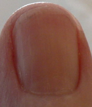 redness under fingernails forming streaks