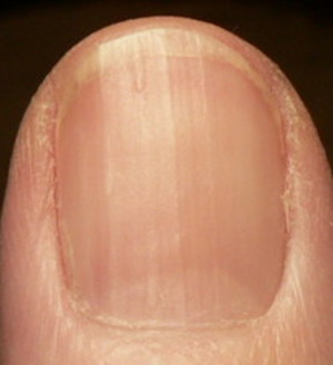 fingernail with thick ridge growing out