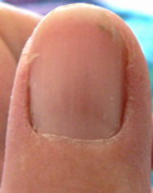 reddish area under fingernail forming into lines