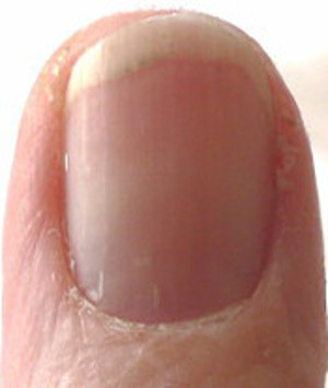 "thumb nail with ""chasm"" in moon"