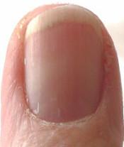 """""""Chasm"""" in thumb nail moon"""