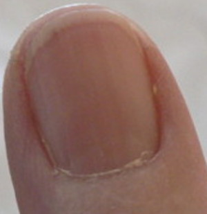 Redness under fingernail