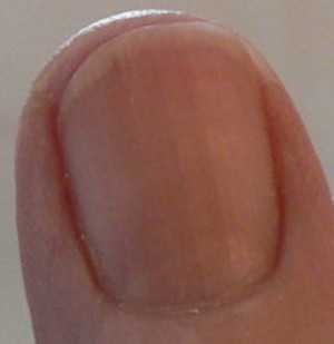 fingernail moon shows improvement from B12 shots and vitamin C