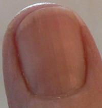 Right_Thumb_Dec_22 May 2014