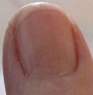 Photo - Fingernail before vitamin C or B12 - redness is darker - moon no longer clear