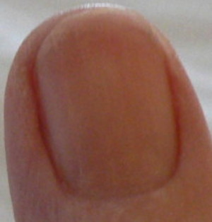 photo showing overnight toothache corresponds with redness obscuring fingernail moon