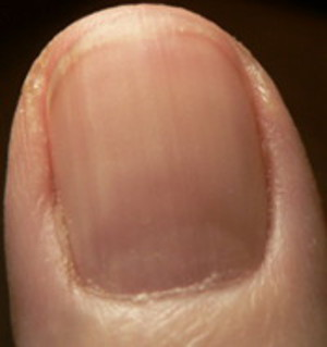 Thick fingernail ridge has grown out. Reddish area indicates infection