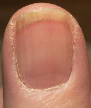 photo of reddish line to the right of center and along top of finger where it attaches to nail