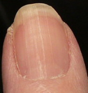 Fingernail with fewer ridges toward the bottom
