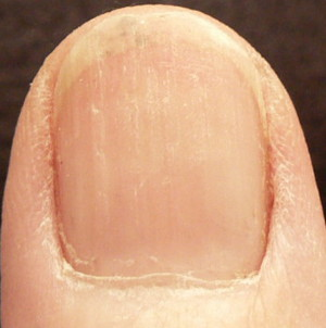 photo - red/taupe line no longer goes all the way to the top of the nail bed with vitamin C use