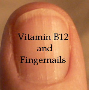 B12 and Fingernails | Health Boundaries B12 Deficiency Symptoms