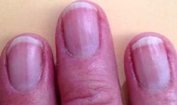 fingernails 6 22 2016 IMG_0364 250