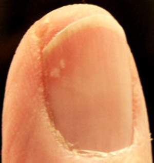 Yellow spots under fingernail