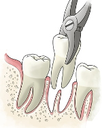 tooth-extraction150