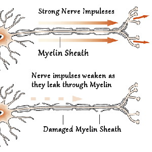 To have strong Nerve Impulses you need a healthy Myelin Sheath