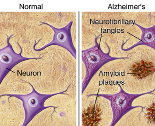 plaques_and_tangles_border neuron - Normal brain vs brain with amyloid plaque buildups