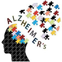 Alzheimers image 200