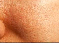 large pores 200