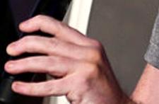 Jake Bailey fingernails2 225