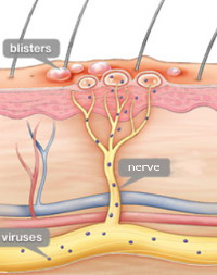 herpes-nerve-virusescropped