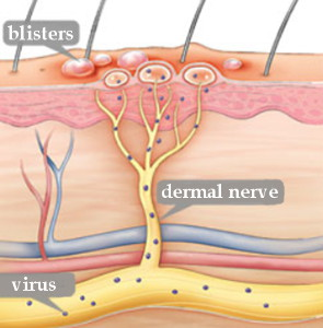 Drawing of shingles fever blisters, dermal nerve and virus