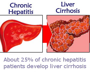 Graphic art - Chronic Hepatitis leading to Liver Cirrhosis - Text: About 25% of chronic hepatitis patients develop liver cirrhosis