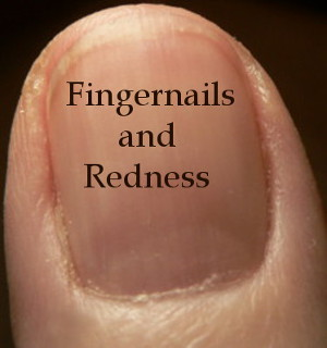 photo of fingernail with redness - Text reads: Fingernails and Redness