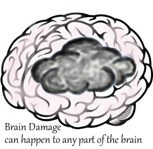 drawing of a pink brain partially covered by a dark cloud - Brain Damage can happen to any part of the brain