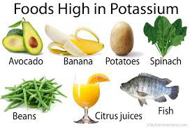Graphic showing foods high in potassium - avocado, banana, potato, spinach, beans, citrus, fish