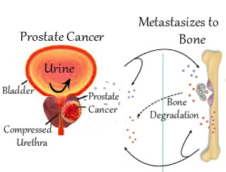 Graphic: Prostate Cancer Metastasizes to Bone